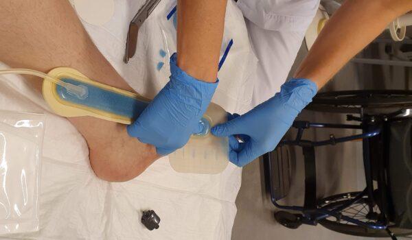 foto van voet die door een verpleegster, alias Florence Nightingale, wordt verzorgd met rechts in beeld de rolstoel van de patiënt.