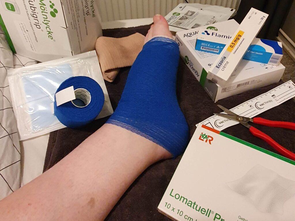 foto van een voet met een blauw verband en daaromheen zalfjes en verbandmiddelen